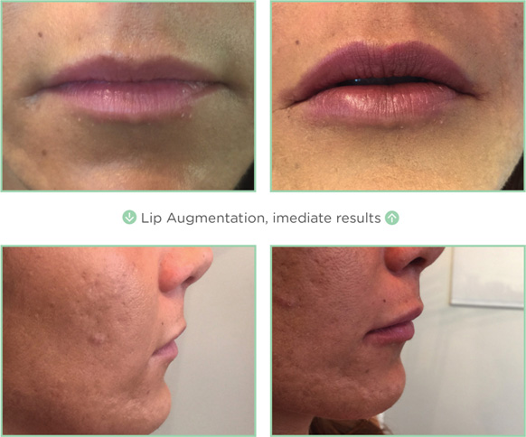 NovaThreads Lips
