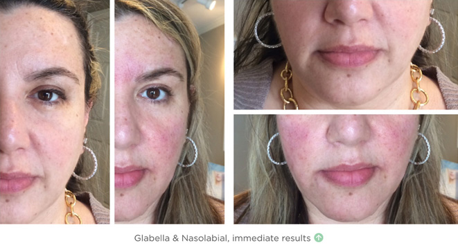 Glabella & Nasolabial